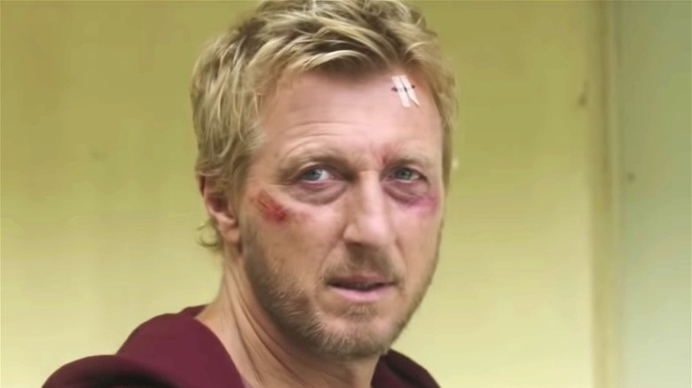 Johnny Lawrence bruised face
