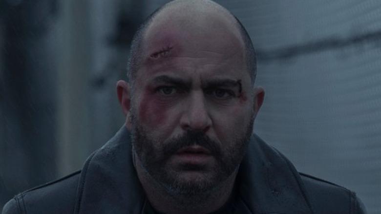 Segev Azulai looking beat up