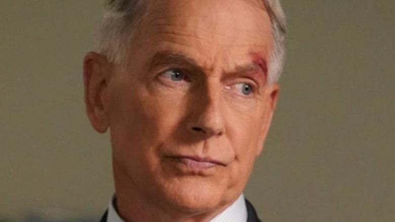 Mark Harmon Agent Gibbs facial injury