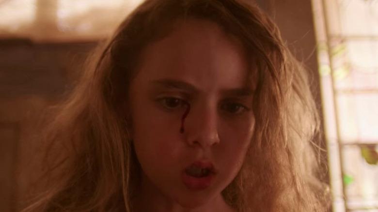 Lexy Kolker Chloe right eye bleeding