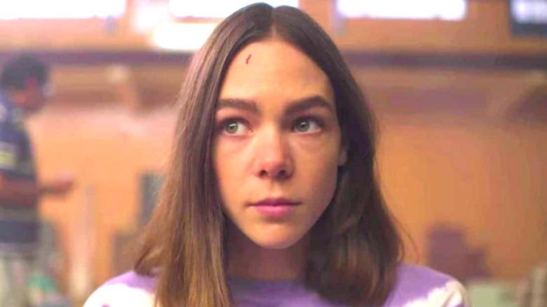Sara Guzman cut on forehead