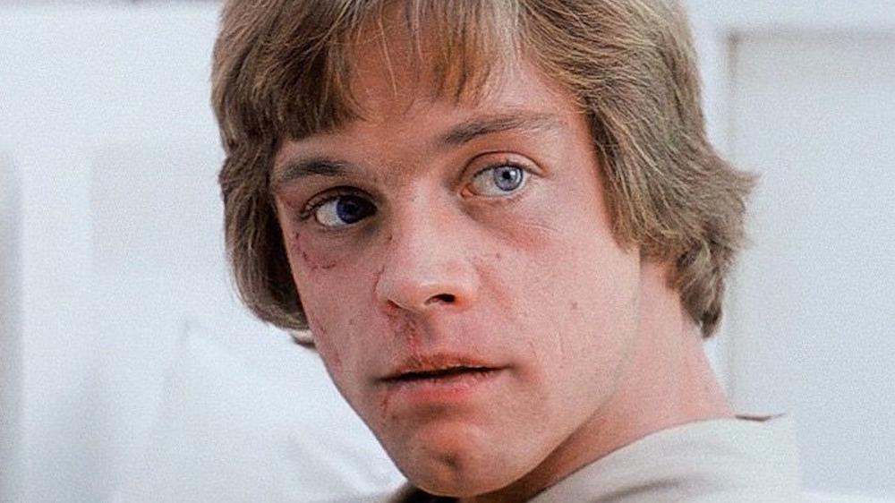 Luke Skywalker after injury
