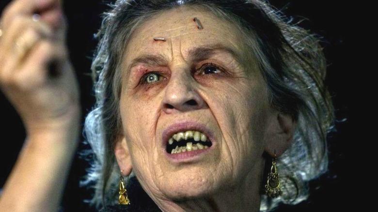 Lorna Raver Ganush staples forehead