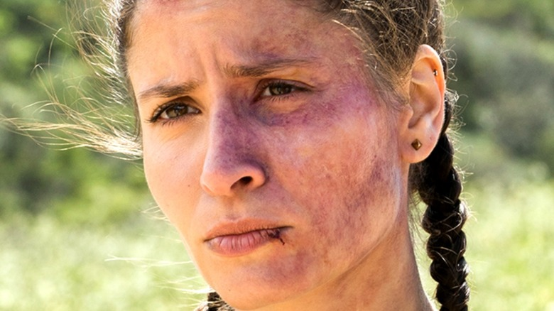 Ofelia with bruises on face