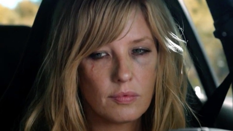 Beth in car with cuts on face