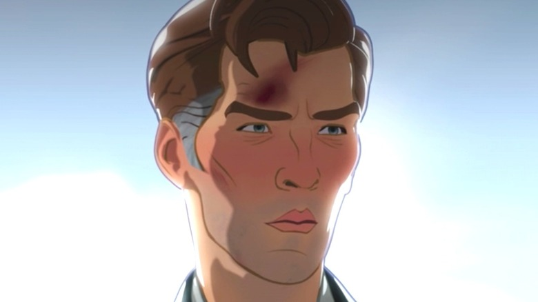 Stephen Strange with a bruised forehead